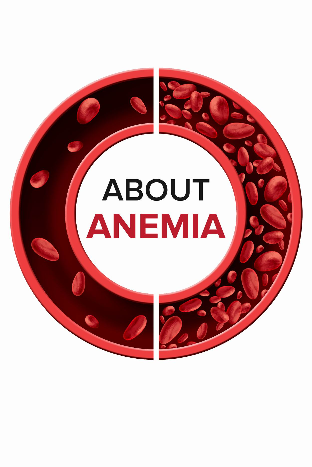 About Anemia