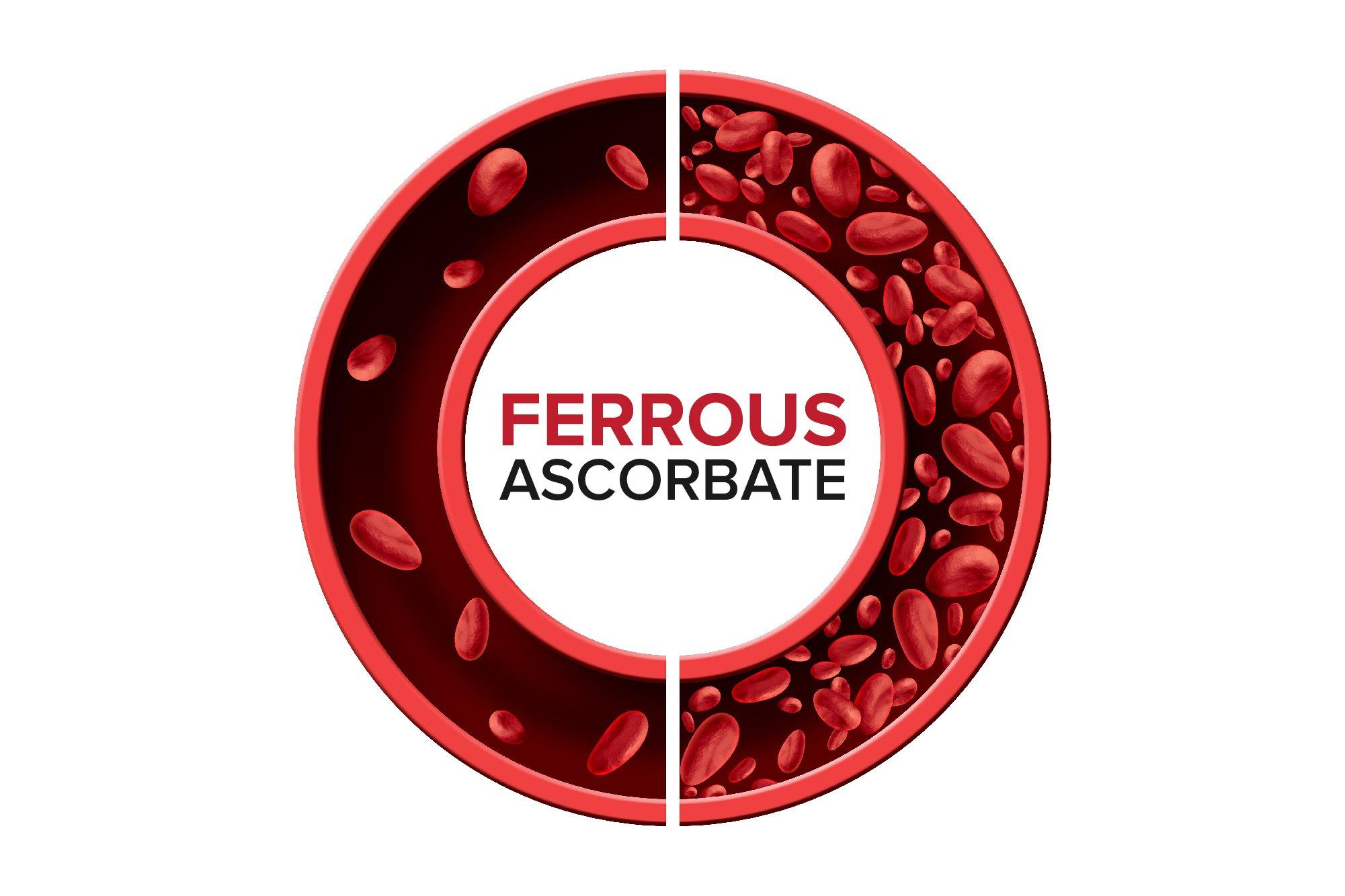 Iron deficiency anemia_Ferrous Ascorbate