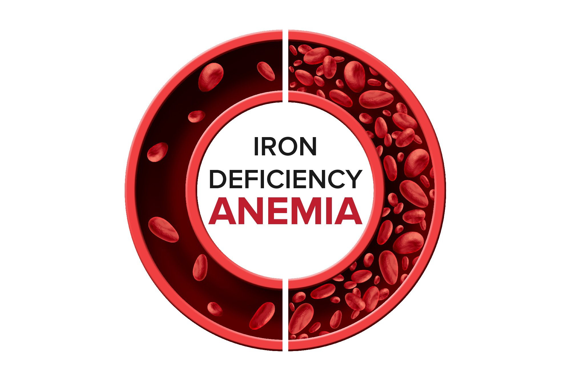 Iron deficiency anemia_Iron Deficiency Anemia