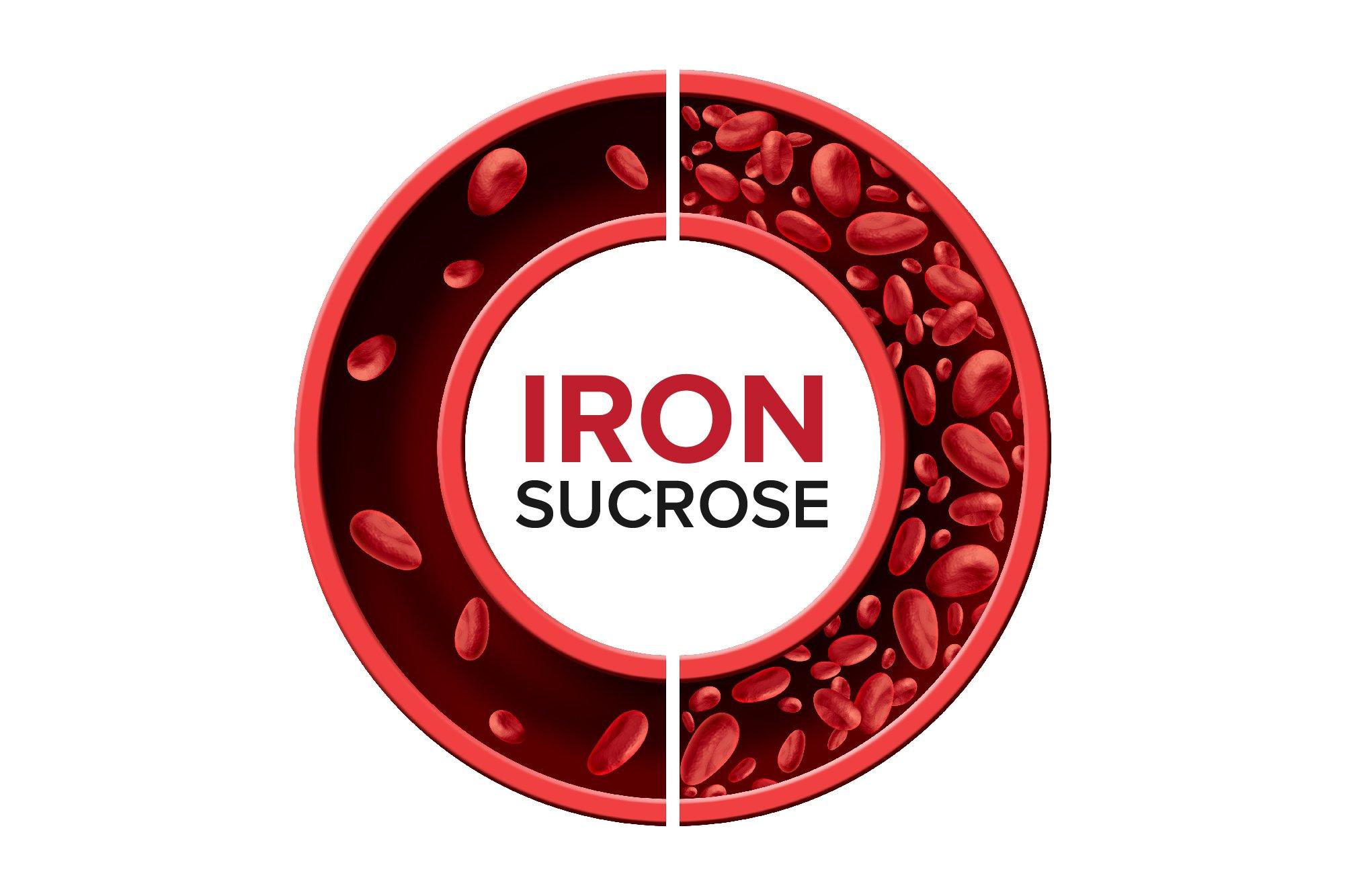Iron deficiency anemia_Iron Sucrose